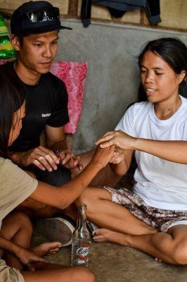 Il volontario victor durante una sessione di fisioterapia nelle Filippine