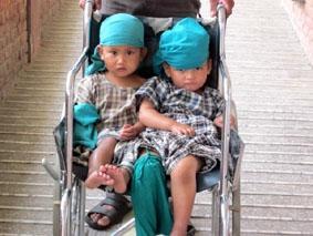 Nepal, Physiotherapie, Operation