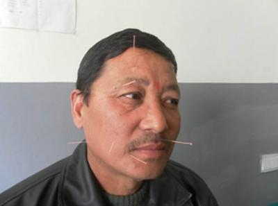 Volunteer acupuncture